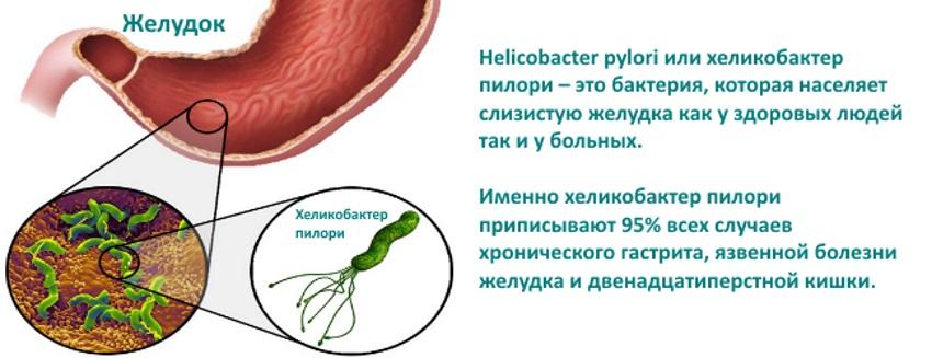 Хеликобактер в домашних условиях