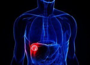 гемангиома печени причины возникновения у взрослых и лечение