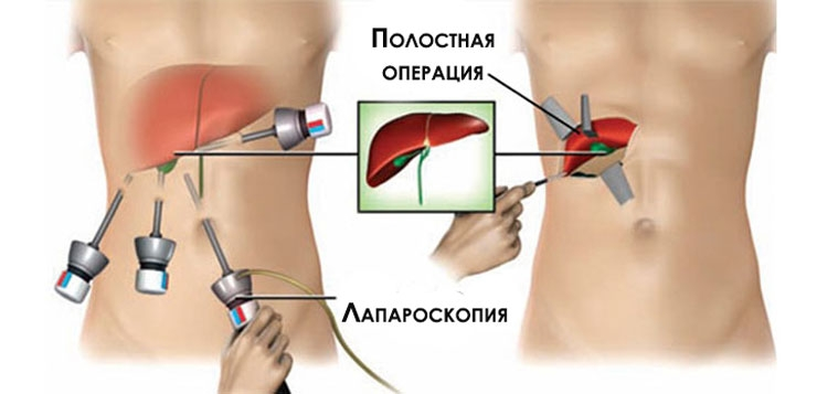 what is cholecystectomy A cholecystectomy is a surgical procedure in which the gall bladder, a small organ located under the liver, is removedthis procedure is performed in cases when patients experience chronic gallstones which cannot be resolved, or severe gallbladder inflammation which does not clear or which threatens other organs.