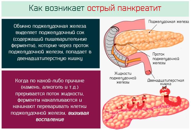 Панкреатит симптомы и причины заболевания лечение