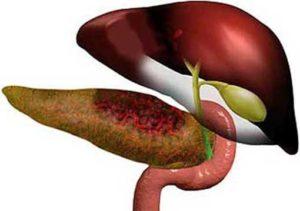 острый панкреатит симптомы и лечение в домашних условиях