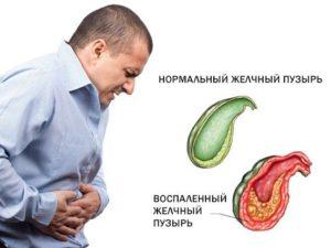 желчекаменная болезнь лечение без операции диета