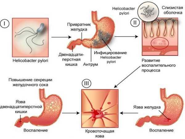 Язва симптомы и лечение в домашних условиях
