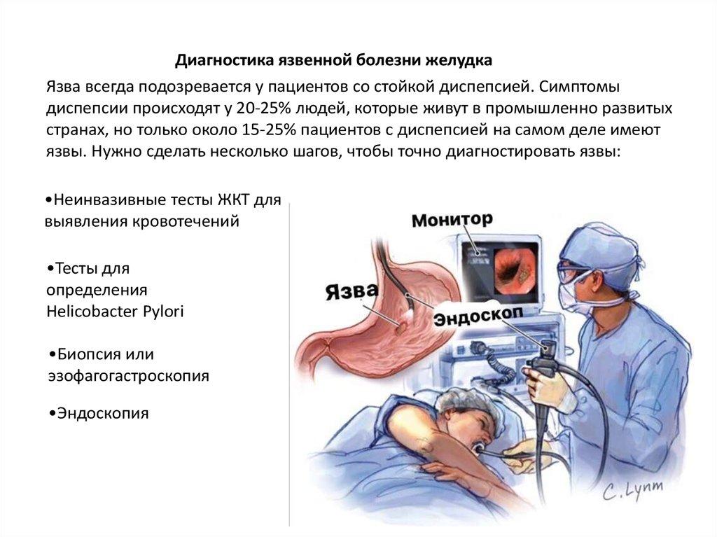 Диагностика заболеваний желудка и кишечника