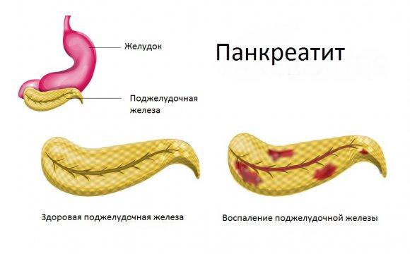 Признаки воспаления поджелудочной у женщин