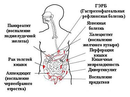 Болит под ребрами слева у беременных 82