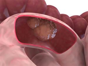 первые признаки рака кишечника на ранней стадии у женщин