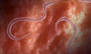 белые черви в кале у человека
