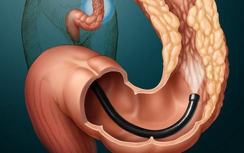 Рак прямой кишки первые симптомы форум