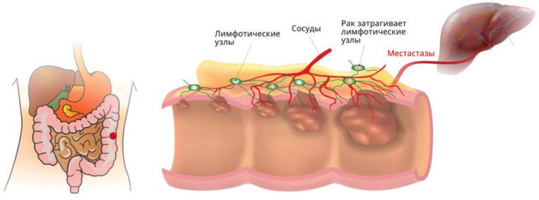 Рак кишечника, как ни странно, является одним из самых распространенных недугов у населения нашей планеты.